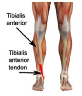 Tendinite tibial anterior