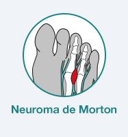 dor diagnostico neuroma morton