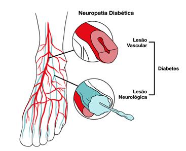 Alterações nos pés diabéticos