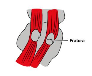 Imagem ilustrativa mostrando o local da fratura do osso sesamoide.