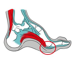 Imagem ilustrativa sobre Pé cavo e área de sobrecarga sobre os ossos sesamoides