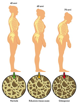 Diminuição da estatura provocada pela osteoporose.