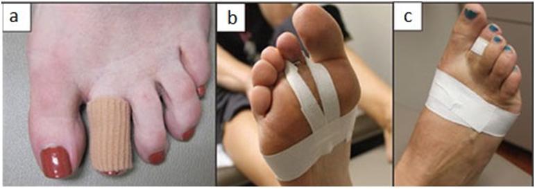 Formas de estabilizar as articulações dos dedos.