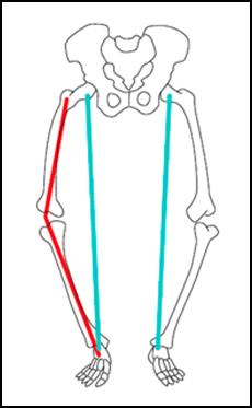 Ilustração mostrando como ficam posicionados os membros inferiores de uma pessoa com joelho varo.