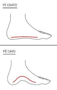 Imagem ilustrativa comparando o formato do arco do pé de uma pessoa com pé chato e outro com pé cavo.