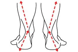 Resultado de imagem para hiperpronação do tornozelo