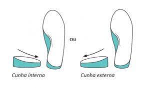 dor no joelho palmilha pés sem dor