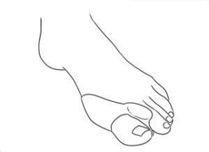 joanete separador dedo