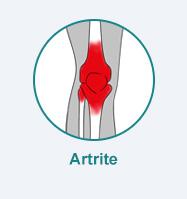 dor diagnostico artrite