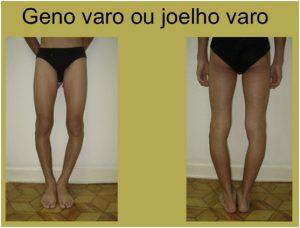 dor articular quadril lombar joelho varo