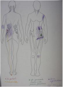 dor articular quadril lombar joelho marcha andar caminhada caminhar tio pisada