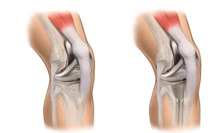 protese de joelho artrite artroscopia dor