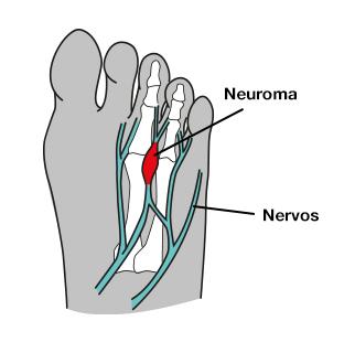 dor todos metatarsos pé neuroma morton