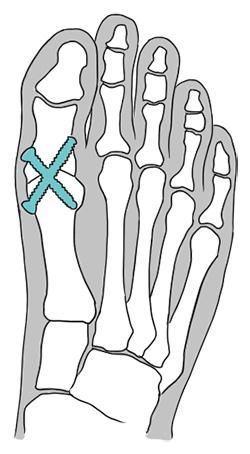 Ilustração de como é feita a cirurgia de artrodese.