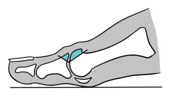 Ilustração da osteotomia.