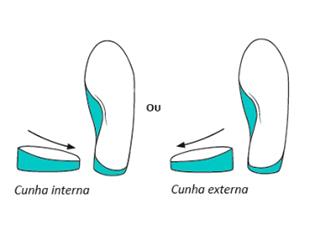 dor tornozelo palmilha pés sem dor correção pisada
