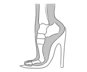 metatarsalgia tratamento dica salto alto calçado sapato
