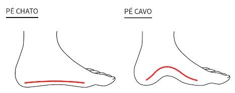 Imagem ilustrativa mostrando a diferença entre o pé chato e o pé cavo.