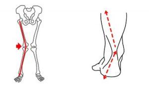 tipo de pisada joelho tornozelo torno valgo pra dentro