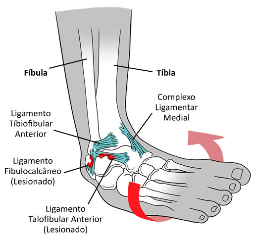 Conheça tudo sobre a Entorse de tornozelo