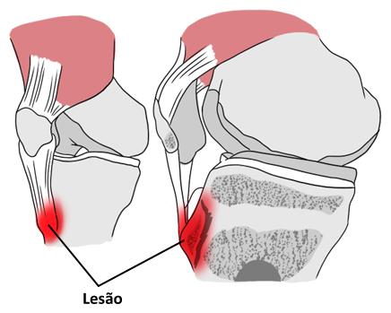 Imagem ilustrativa representando a lesão na cartilagem do joelho causada pela osteocondrite.