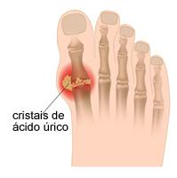 Imagem ilustrativa mostrando o acúmulo de cristais de ácido úrico presentes na articulação do dedão