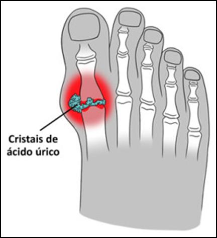 Imagem ilustrativa mostrando a formação de cristais de ácido úrico na articulação do dedão.
