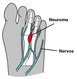Imagem mostrando como é o neuroma de Morton anatomicamente.