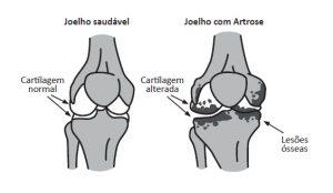 Joelho com Artrose (Degeneração da cartilagem)