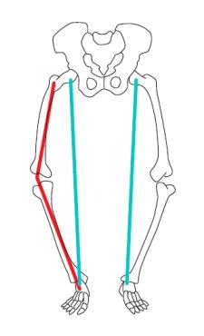 Imagem ilustrativa mostrando o desalinhamento em varo.