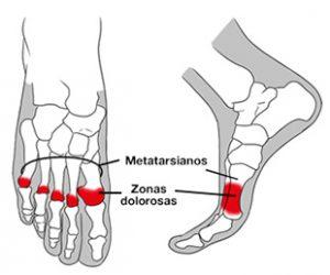 Palmilha Metatarsalgia