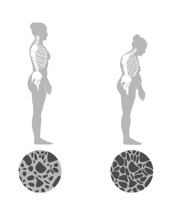 Comparação entre osso normal e osso com osteoporose.