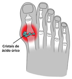 Imagem ilustrativa de uma gota no dedão do pé.