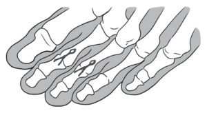 Dedos em Garra Cirurgia