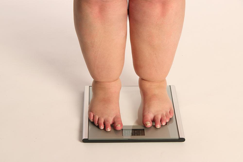Sobrepeso