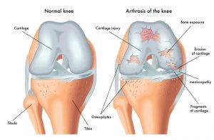 Imagem ilustrativa mostrando a diferença entre um joelho normal e outro com artrose