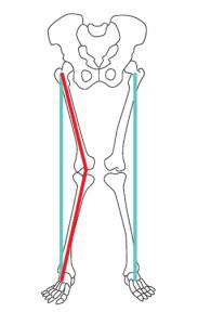 Imagem ilustrativa mostrando o não alinhamento dos joelhos em valgo.