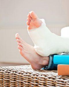 Imobilização do pé com tendinite.