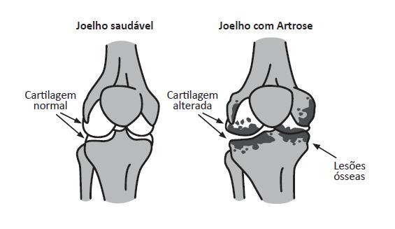 Imagem ilustrativa mostrando a diferença entre um joelho saudável e outro com artrose.