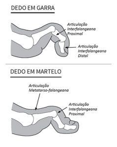 Imagem ilustrativa mostrando as especificações do dedo em garra e dedo em martelo.