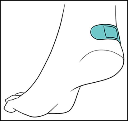 Curativo adesivo para diminuir pontos de fricção com o calçado.
