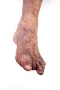O pé diabético com amputações.