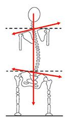 Imagem de um sistema locomotor torto devido a diferença de membros.