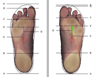 Diferença dos pés