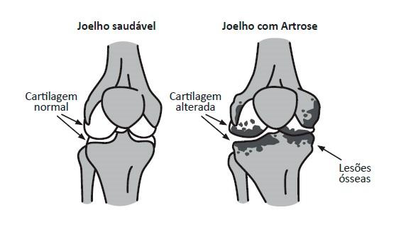 Ilustração de um joelho saudável e um joelho com cartilagem afetada