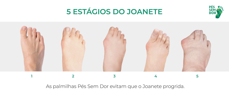 Imagem exemplificando os cinco estágios do joanete