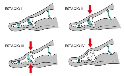 Ilustração mostrando os quatro estágios do hálux rígido