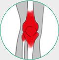 icone ilustrativo para artrite