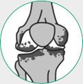 icone ilustrativo para artrose