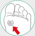 icone ilustrativo para bolhas nos pés